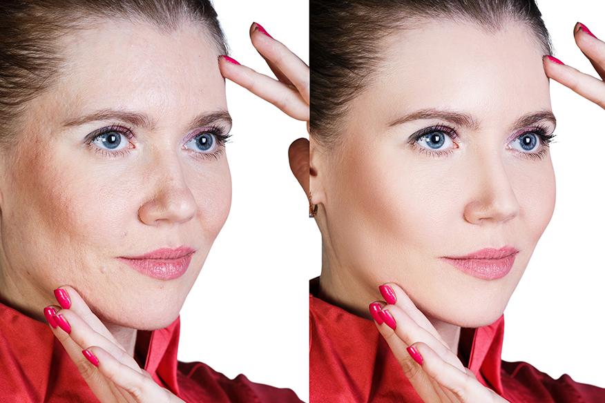 Anti-Aging Treatments   Vanity Spa   Jacksonville
